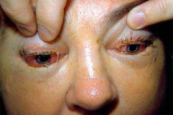 Поражение конъюнктивы глаз человека трихинеллой, фото болезни животных человека фотография