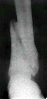 Рис.3 Состояние костной мозоли на 83 сутки лечения